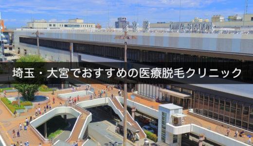 埼玉・大宮でおすすめの医療脱毛クリニック・レーザー脱毛 4選